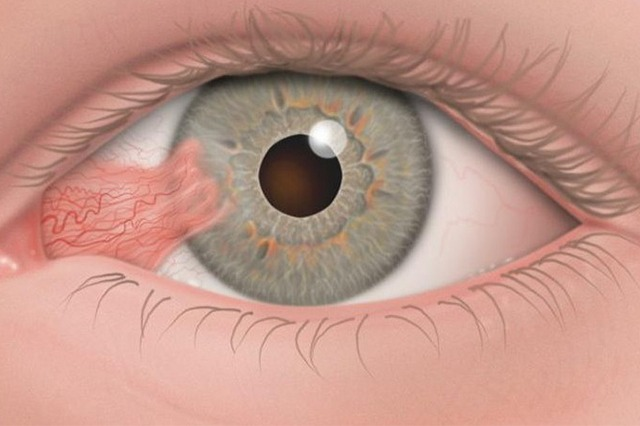 Pterygium, What is it? How is it treated?